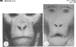 Reesusahv enne ja 6 kuud pärast suu kaudu hingamist