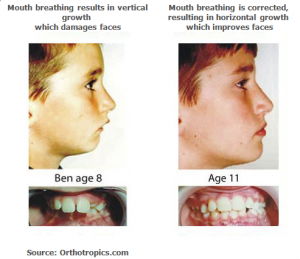 mouthbreathing_corrected